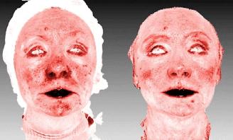 Состояние поверхностных сосудов дермы до и после курса инъекционной терапии коллагеновым биоматериалом «Коллост» 7%.